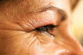 Get control over your wrinkles